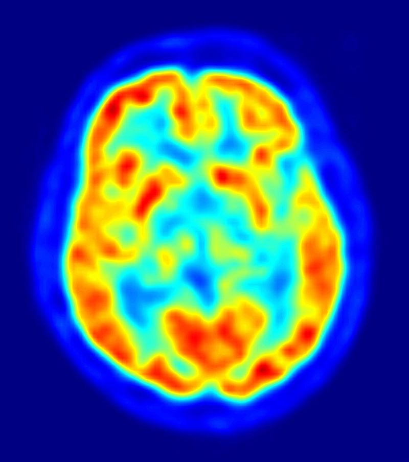 Vedere axiala a creierului la tomografie prin emisie de pozitroni.